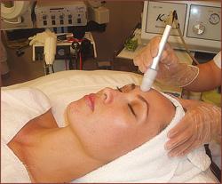microdermabrasion-facial